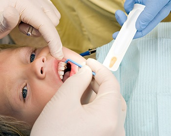 Young child getting dental sealants