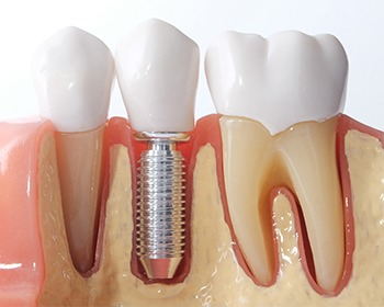 Model teeth and implants