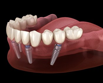 implant dentures in Lincoln