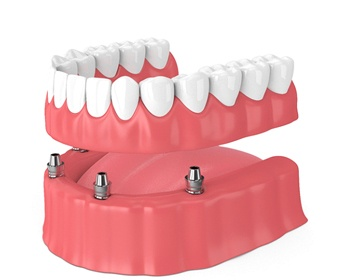 positioning implant dentures in Lincoln