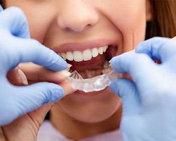 woman putting in invisalign tray