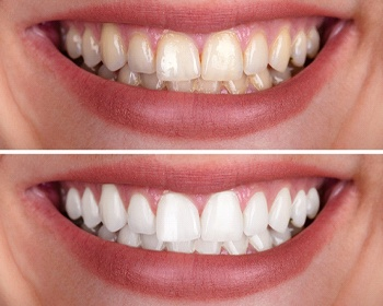 before and after whitening with virtual smile design in Lincoln