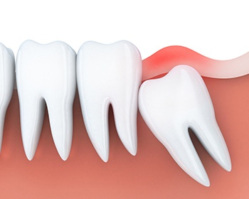 animation of impacted tooth under gums